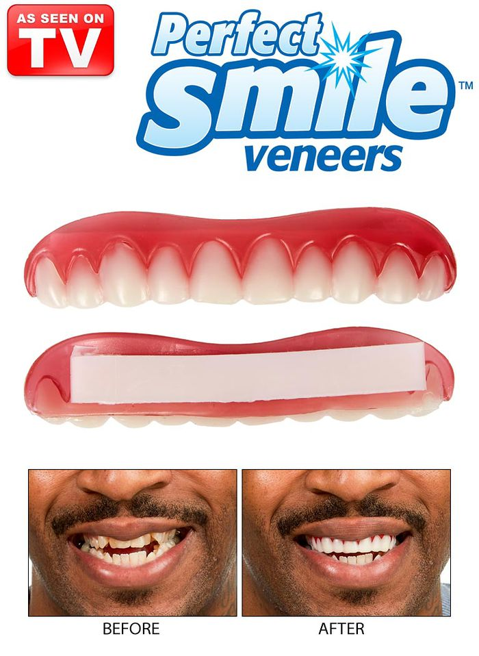 perfect smile veneers установка